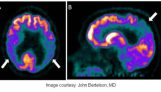 Collaboration aimed at long-term Alzheimer's genetics, biomarkers study